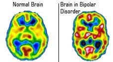 https://www.reddit.com/r/bipolar/comments/3x5i91/this_a_normal_brain_and_a_bipolar_brain_its_real/